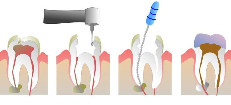 Everything You Need to Know About The Root Canal Treatment